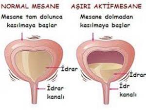 asiriaktifmesane