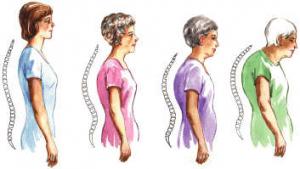 Osteogen – Osteoporoz